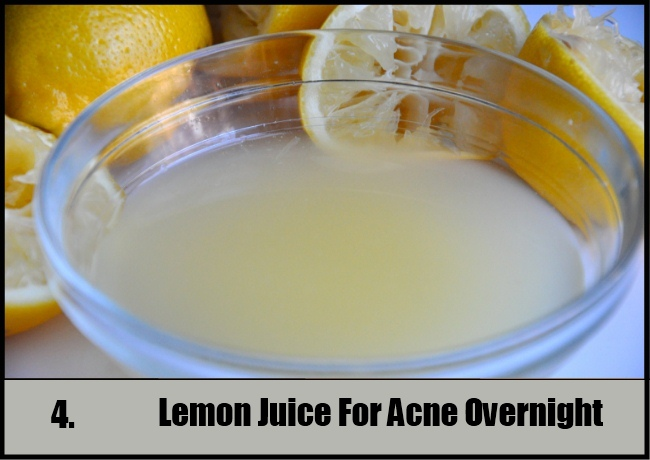 Lemon Juice For Acne Overnight