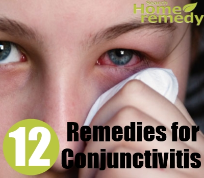 Conjunctivitis in Adults