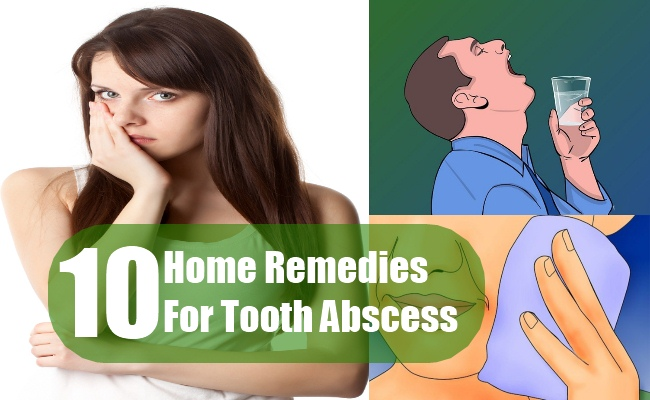 Home Remedies For Tooth Abscess
