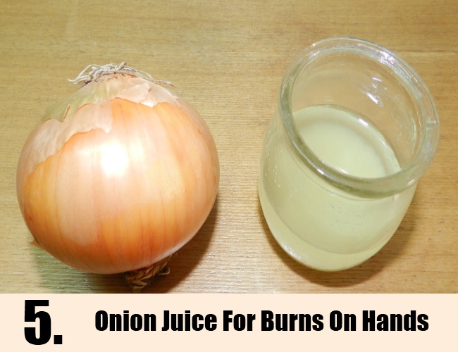 Onion Juice For Burns On Hands