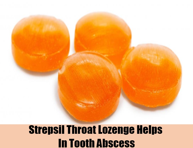 Strepsil Throat Lozenge Helps In Tooth Abscess