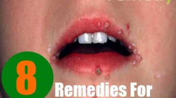 8 Home Remedies For Human Papilloma Virus