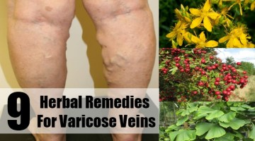 Herbal Remedies for Varicose Veins