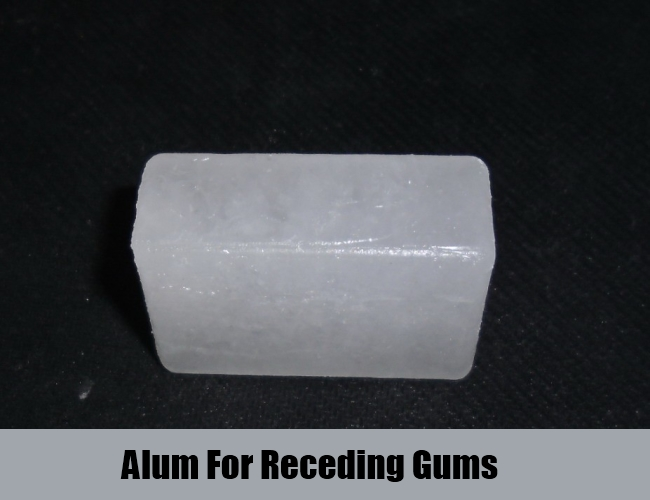 Alum For Receding Gums