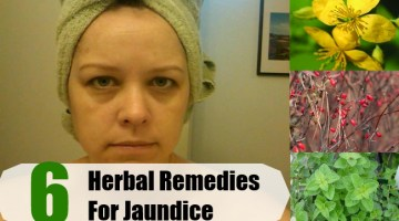 Herbal Remedies For Jaundice