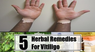 Herbal Remedies For Vitiligo