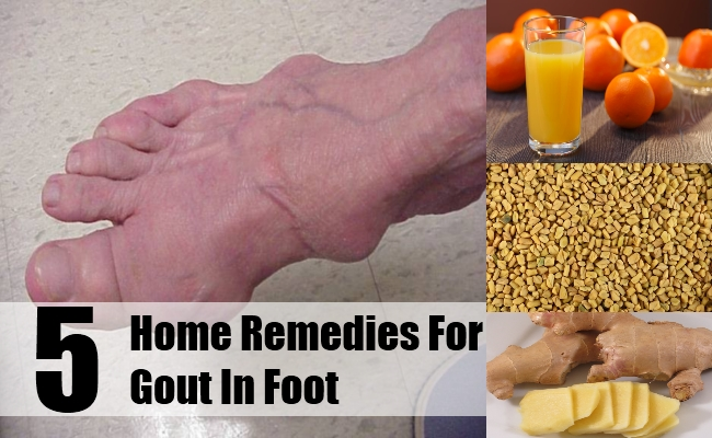 Home Remedies For Gout In Foot