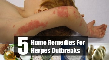Home Remedies For Herpes Outbreaks