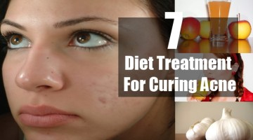 Natural Treatment For Curing Acne