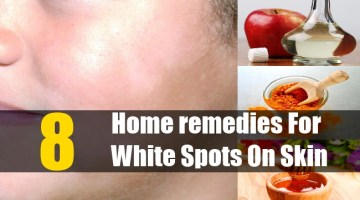 Home remedies For White Spots On Skin