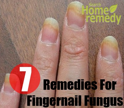 The Symptoms Of Fingernail Fungus Are Spots Appear On Nails And Gradually It Spreads All Over Become Yellow Or Discolored