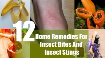 Home Remedies For Insect Bites And Insect Stings
