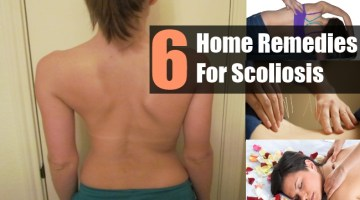 Home Remedies For Scoliosis