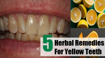 Herbal Remedies For Yellow Teeth