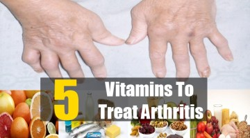 Vitamins To Treat Arthritis