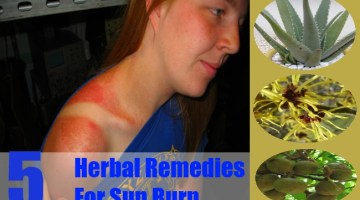 Herbal Remedies For Sun Burn