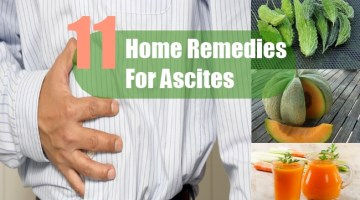 Home Remedies For Ascites