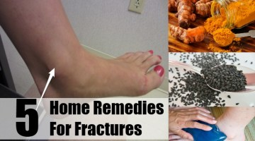 Home Remedies For Fractures