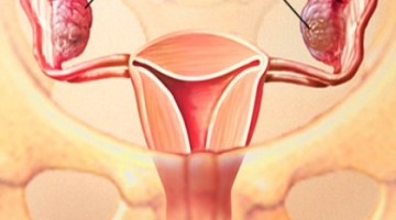 Ovary Cancer