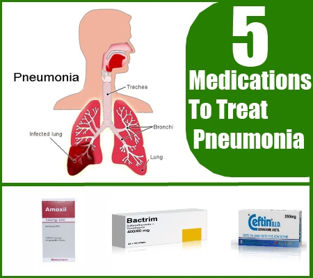 how to know if a dry cough is pneumonia