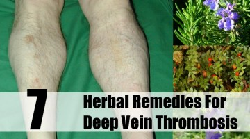 Herbal Remedies For Deep Vein Thrombosis