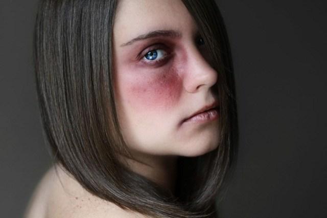 Tak cukup menyiksa batin, pasangan menggunakan cara yang lebih tega lagi yakni melakukan kekerasan fisik seperti memukul, menampar, menendang dan sebagainya. Gambar via: www.verywell.com