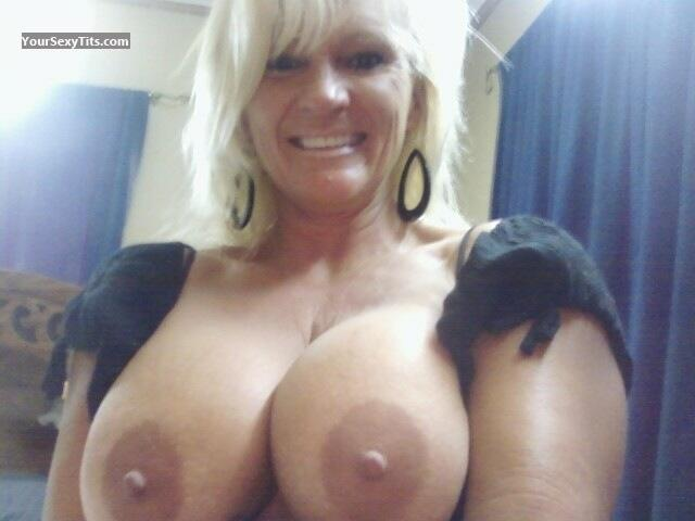 born with third breast woman
