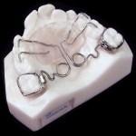aparat-ortodontic-10