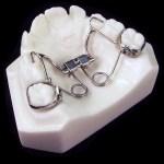 aparat-ortodontic-12