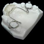 aparat-ortodontic-2