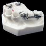 aparat-ortodontic-4