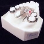 aparat-ortodontic-6