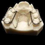 aparat-ortodontic-7