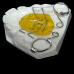 aparat-ortodontic-9