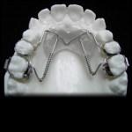 aparat-ortodontic