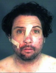 In his booking photo, Michael Gibson's face shows the damage inflicted by glass shards falling 30 feet after a BART cop pushed him through a quarter-inch thick window. Gibson, 37, suffers from bipolar disorder and schizophrenia, his family says. – Photo: Alameda County Sheriff's Office