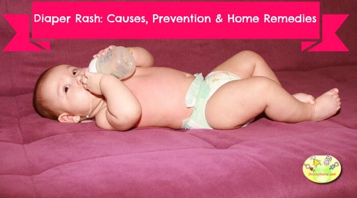 Causes, prevention & home remedy for diaper rash