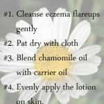 chamomile oil for eczema