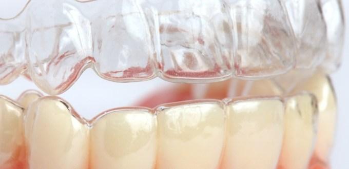 braces 05