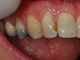 Amalgam_staining treatment