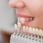 dental veneers in kolkata