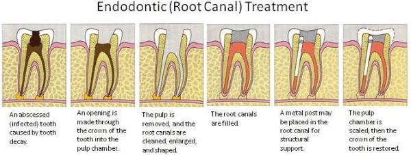 root-canal-steps-orange-county