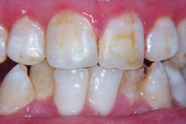 stained tooth