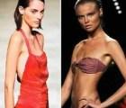 Francia legisla contra la anorexia