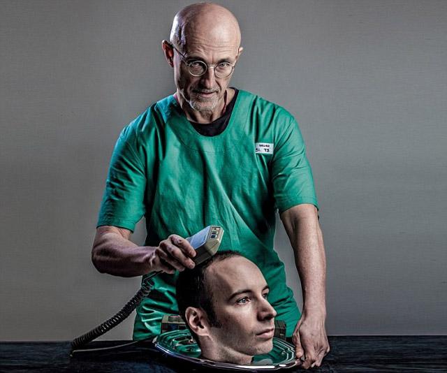 Transplante-cabeza-2