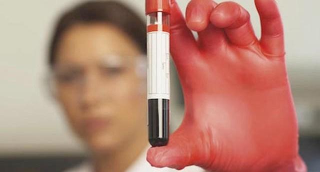 analisis_sangre_