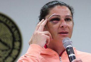 Detienen y procesan a presunto agresor de Ana Gabriela Guevara