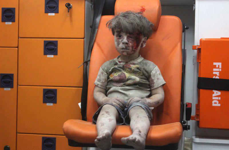Niño herido en Siria