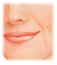 Injectable Fillers e.g. Perlane, Prevelle, Juvederm, Restylane by Seattle Plastic Surgeon
