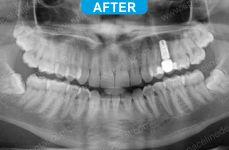 Implants - 4-4
